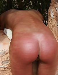 Burnt bare bottom